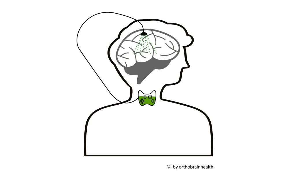 De schildklier kan ook een oorzaak zijn van depressie, hersenmist en dementie